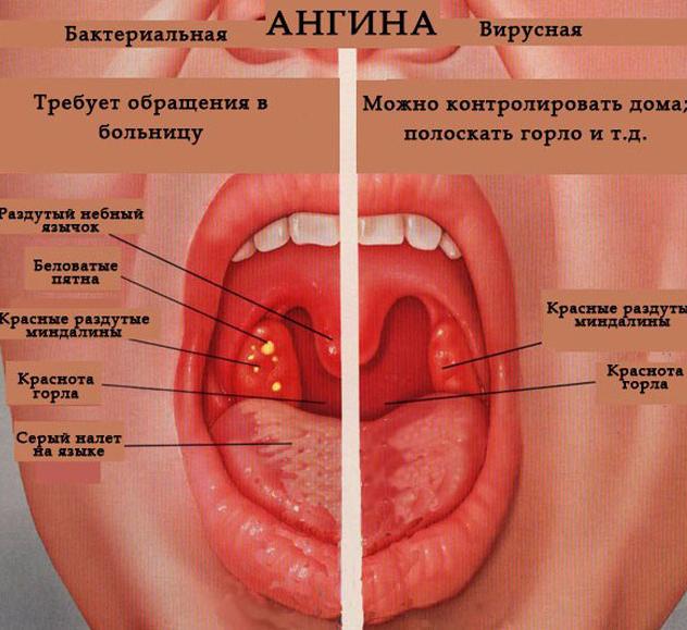 Небольшая температура и боль в горле как лечить