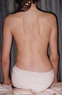 Советы костоправа: 2 упражнения, которые выпрямляют позвоночник