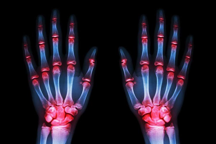 Психосоматические причины ревматоидного артрита