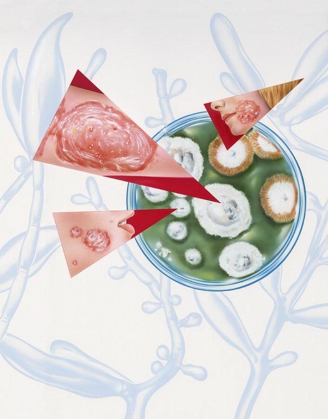 Симптоматика и лечение грибковой инфекции в организме